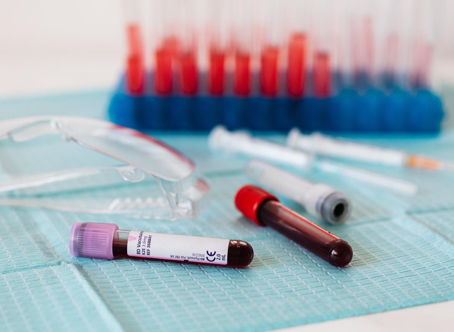 Enfermedades cardiovasculares: ¿cómo leer tus análisis de sangre?