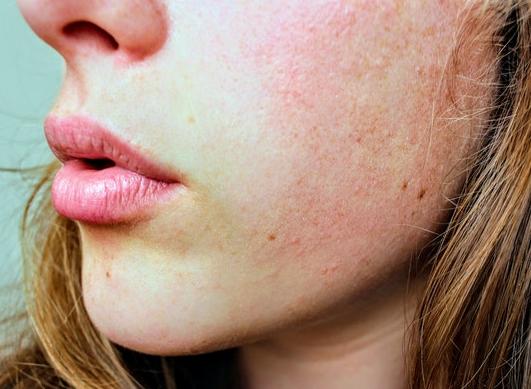 ¿Cómo afrontar el frío con una piel atópica?