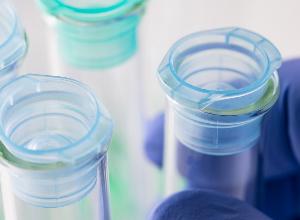 Investigación médica en lupus: hacia tratamientos menos tóxicos y medicina personalizada